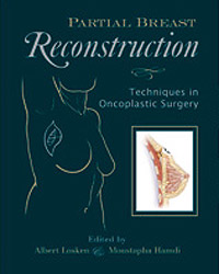 Partial Breast Reconstruction